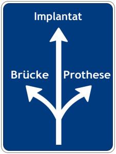 Brücke, Prothese oder Implantat?
